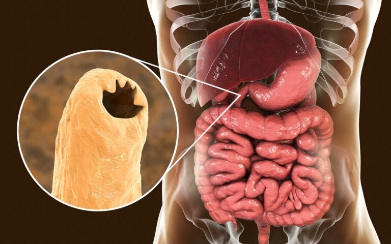 ¿Qué es la anquilostomiasis y qué la produce?