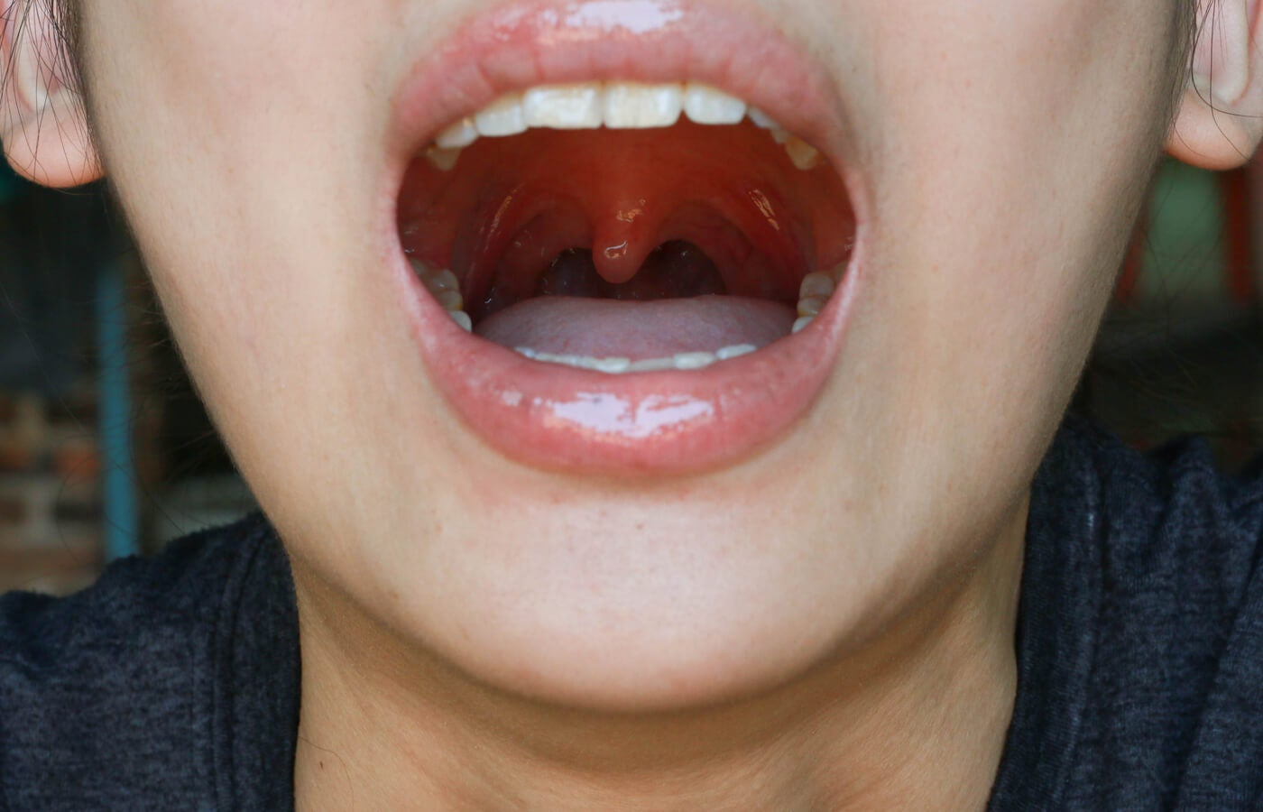 (Antonella) ¿Qué es la uvulitis y por qué puede ocurrir?