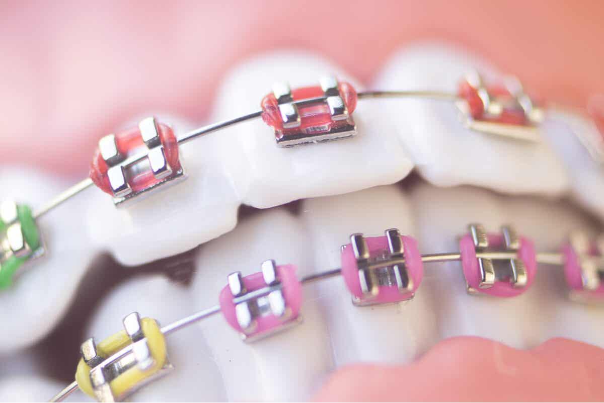 Ortodoncia para tratar dientes de leche en adultos.