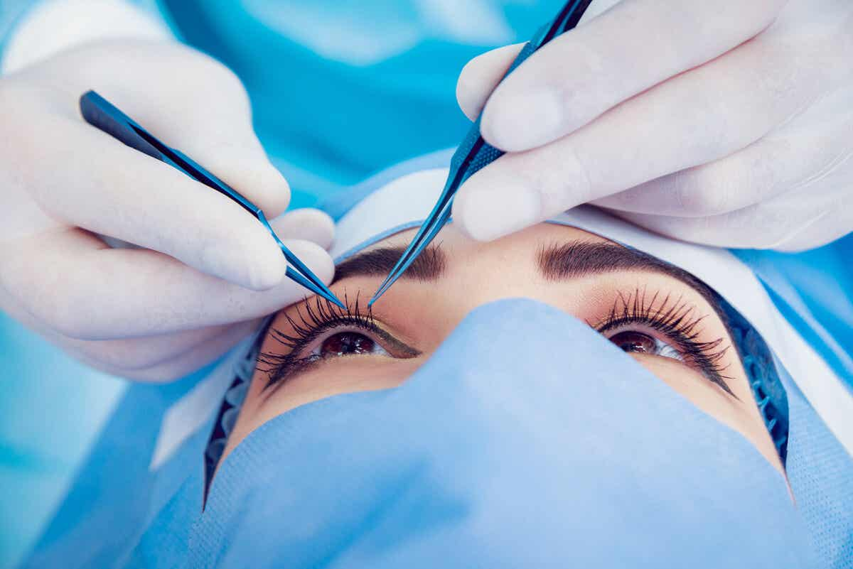 Cirugía ocular de blefaroplastia.