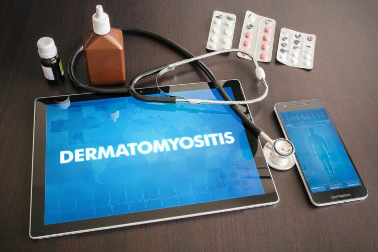 Dermatomiositis: todo lo que debes saber