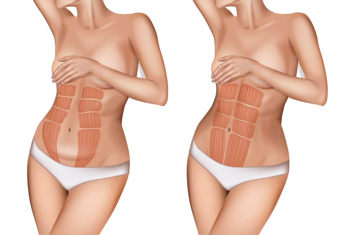 Diástasis abdominal: ¿qué es y cuáles son sus riesgos?