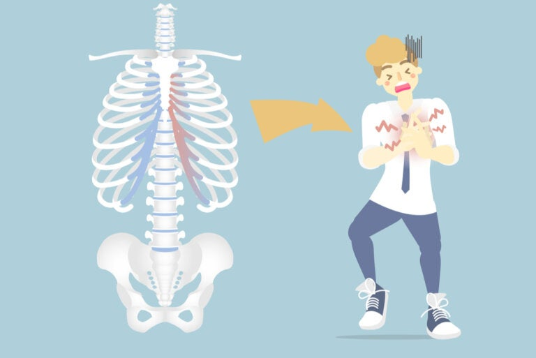 Costocondritis: ¿qué es y por qué ocurre?