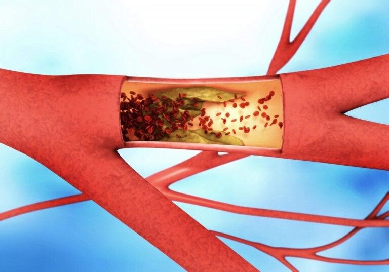 ¿Qué diferencia la arteriosclerosis de la aterosclerosis?