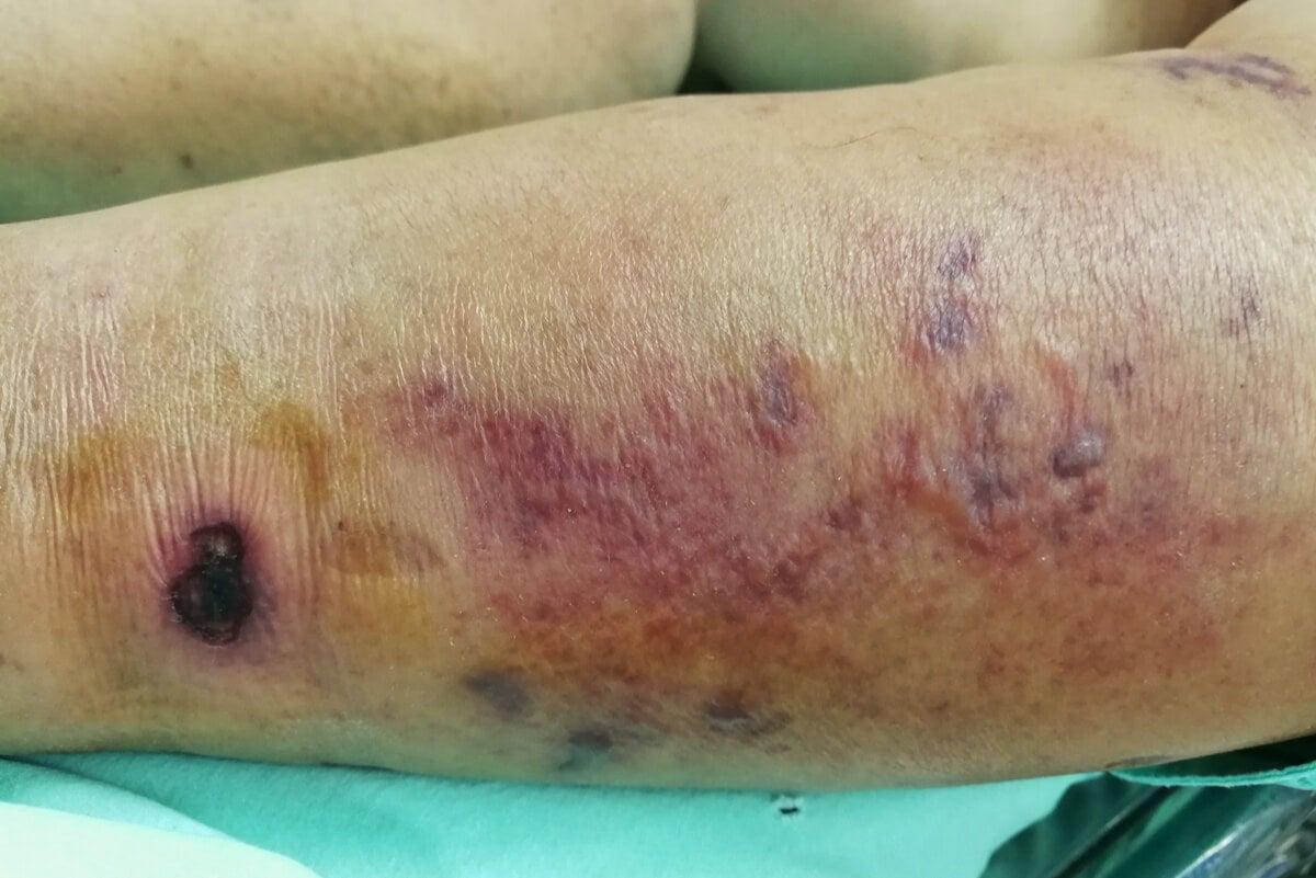 Infección grave de la piel.