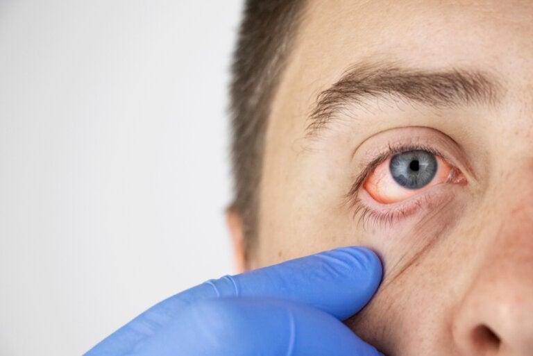 Haemolacria: llorar sangre es real