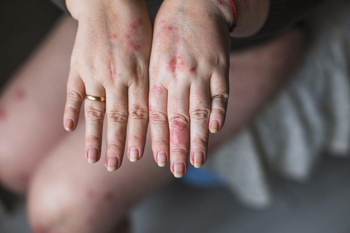 Causas de la dermatomiositis