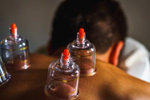 Cupping o masaje con ventosas: ¿en qué consiste?