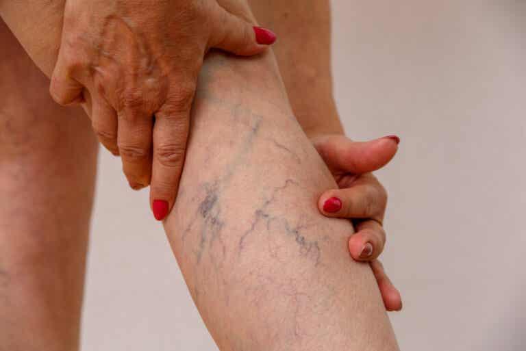 Flebitis: qué es, síntomas y tratamiento