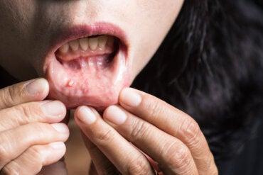 Cáncer de boca: todo lo que debes saber