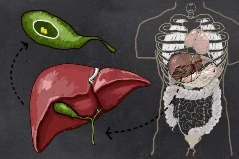 Obstrucción en las vías biliares: todo lo que debes saber