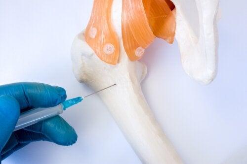 Aspiración y biopsia de médula ósea: ¿en qué consiste?