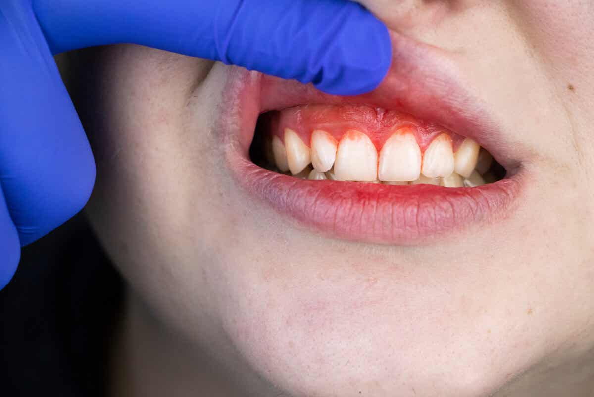 ¿Por qué es tan importante mantener las encías sanas?