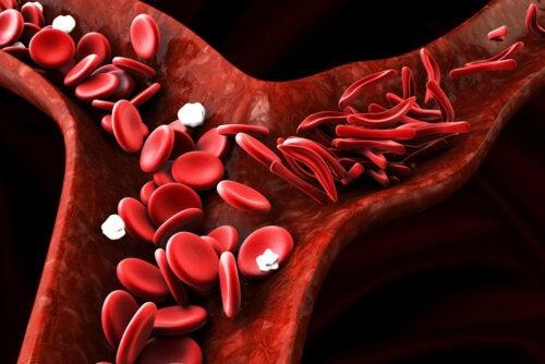 Esferocitosis hereditaria: síntomas, diagnóstico, tratamiento