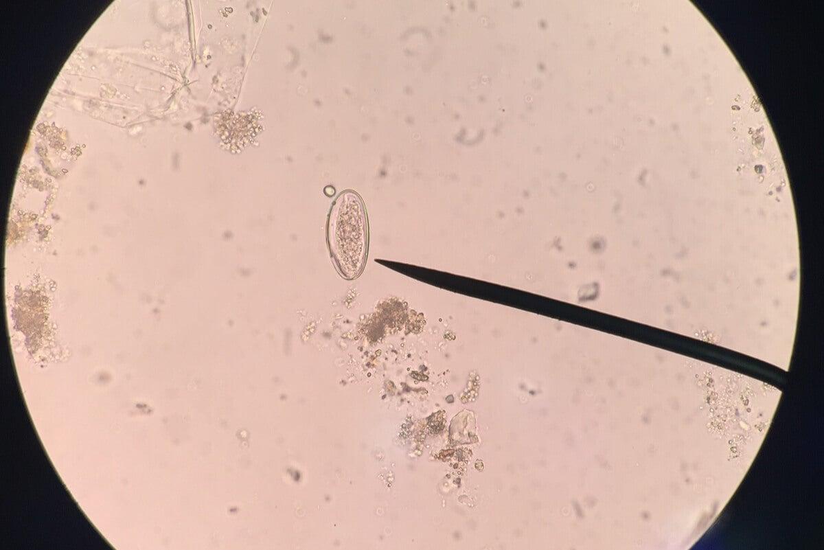 Huevo de enterobius al microscopio.