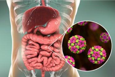 Infección por norovirus: síntomas, causas y tratamientos