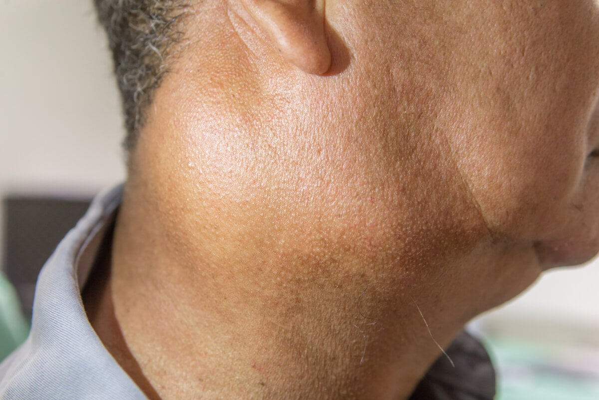 Inflamación de la glándula parótida.