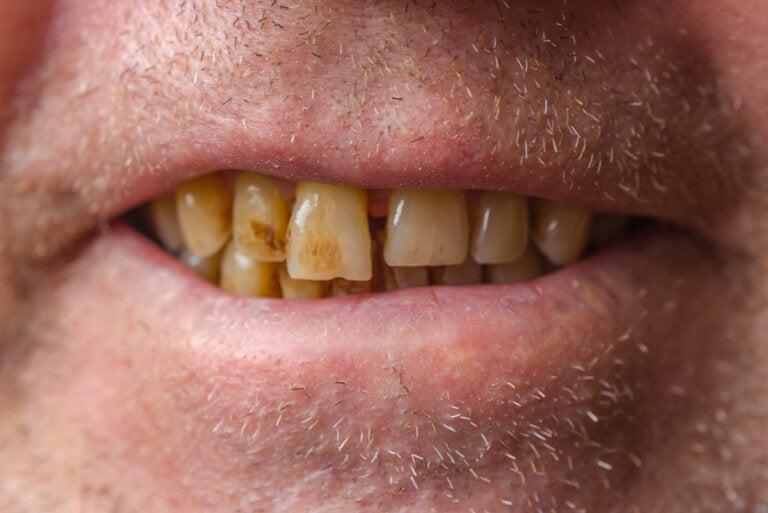 Manchas en los dientes: ¿por qué aparecen y cómo eliminarlas?