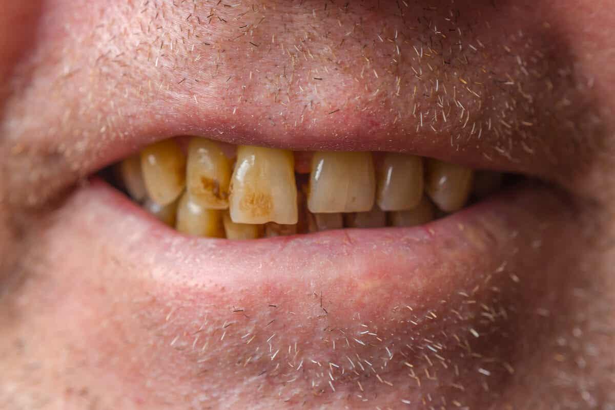 Manchas en los dientes.