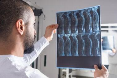 Tumores vertebrales: síntomas, causas, tratamientos
