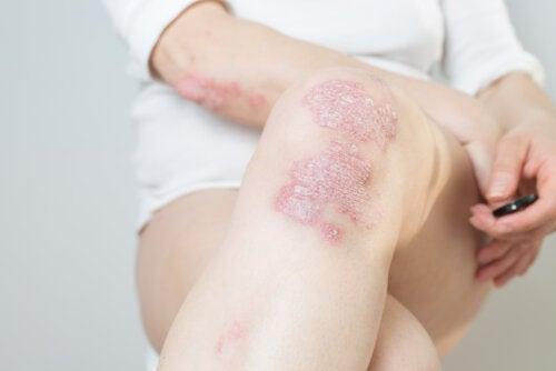 Las 8 enfermedades que más atacan al sistema inmunitario