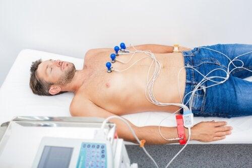 Bradicardia: causas, síntomas y tratamiento