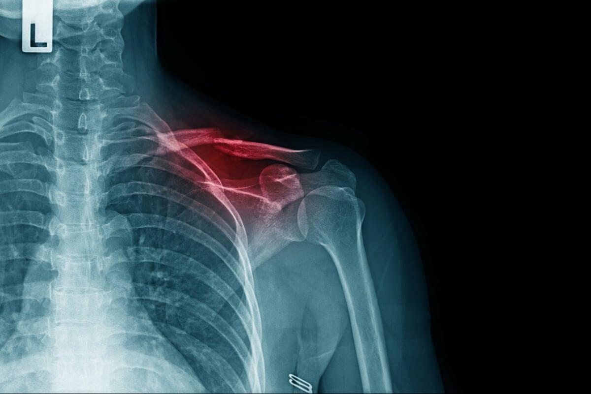 Radiografía de una fractura de clavícula.