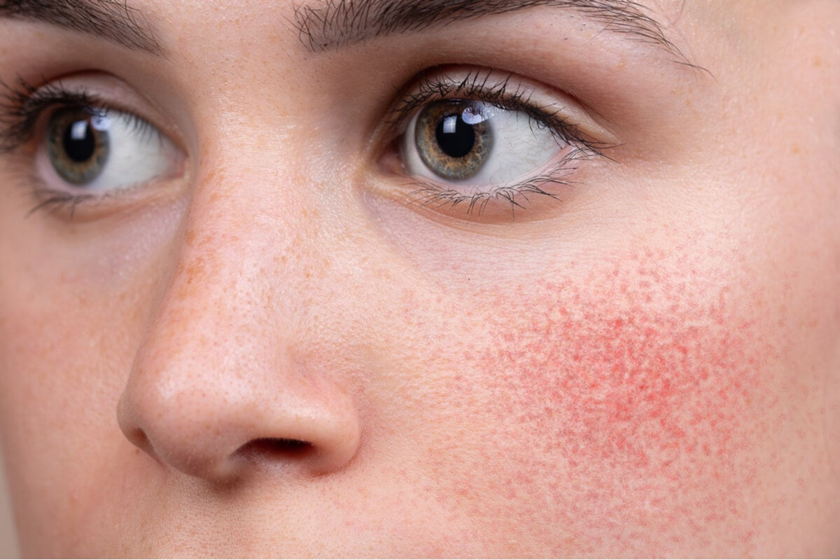 Enrojecimiento del rostro