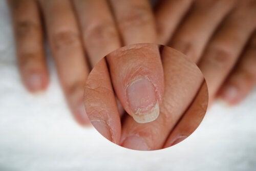 ¿Cuáles son los suplementos naturales para las uñas?