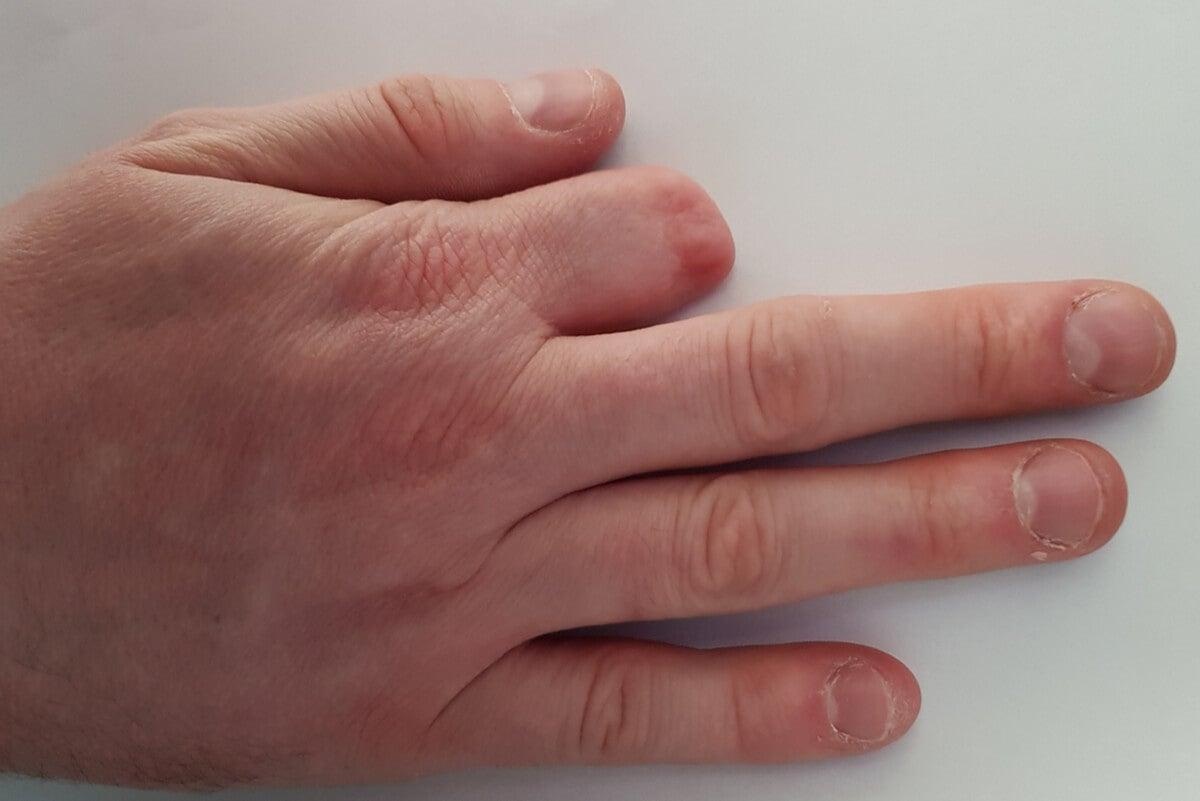 Mano con dedo amputado.