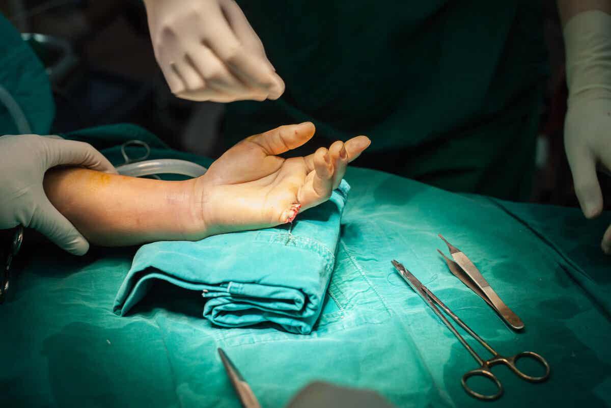Cirugía para la amputación accidental de un dedo.