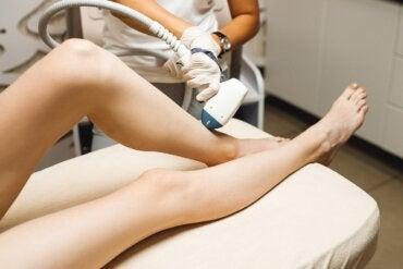 ¿Cómo funciona la depilación láser y qué efectos tiene sobre la piel?