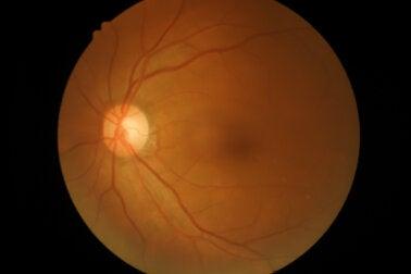 Oclusión de la arteria retiniana: ¿qué es y por qué ocurre?