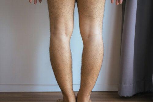 Genu varo o piernas arqueadas: ¿por qué ocurre y cómo se trata?