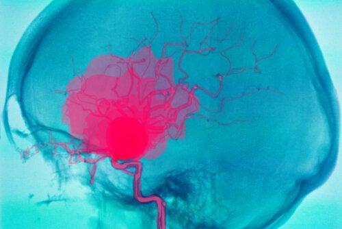 ¿Qué es una hemorragia cerebral y por qué puede ocurrir?
