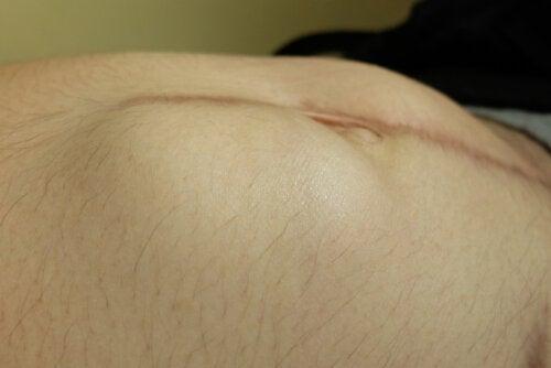 Hernia incisional: causas, síntomas y tratamientos