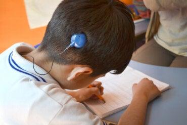 Día Internacional del Implante Coclear: todo lo que debes saber