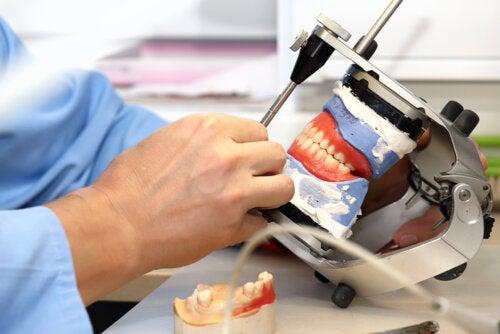 Prótesis sobre implantes dentales: ¿qué son y qué tipos existen?