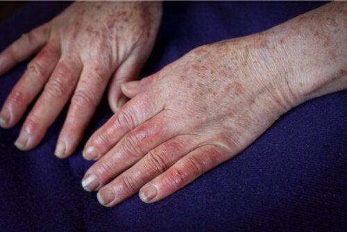 Enfermedad de Buerger: causas, síntomas y tratamientos