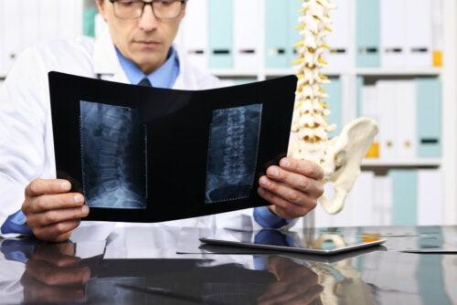 ¿Cuándo es necesario operar una hernia discal?
