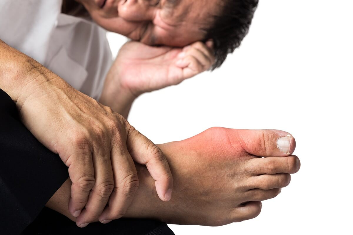 Gota: causas, síntomas y tratamiento