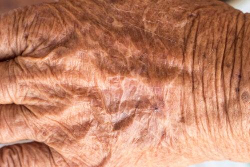 ¿Qué es la piel de crepé y cómo se puede evitar?