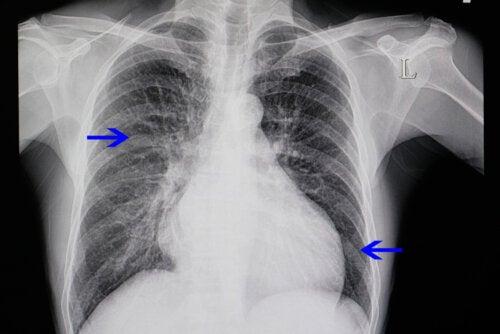 ¿Qué es la cardiomegalia y por qué ocurre?