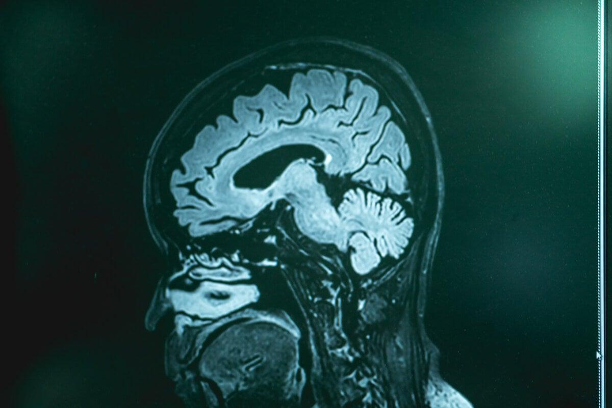 Cerebro comido por ameba.