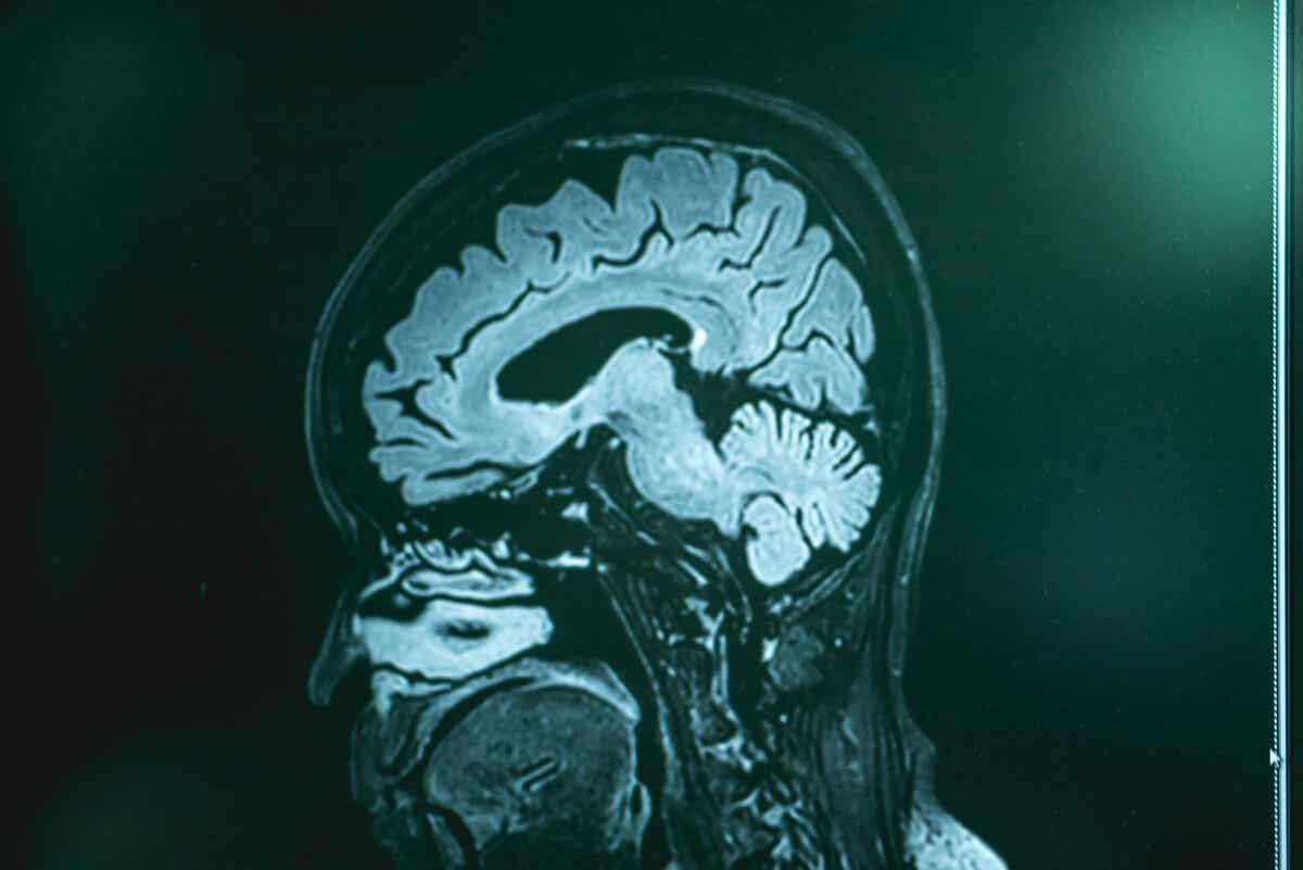 Exploración del cerebro en paciente con clonus.