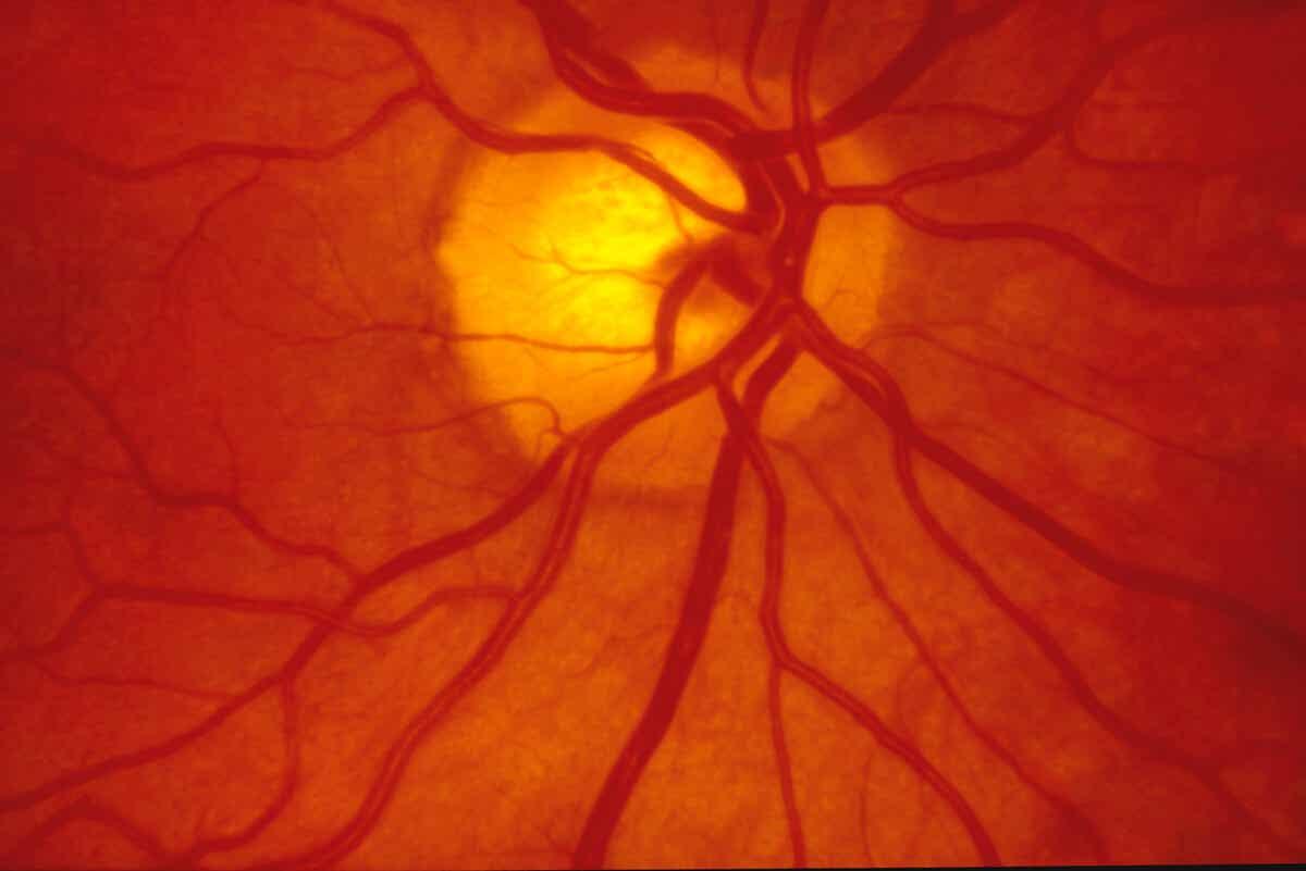 Retina y sus vasos sanguíneos.