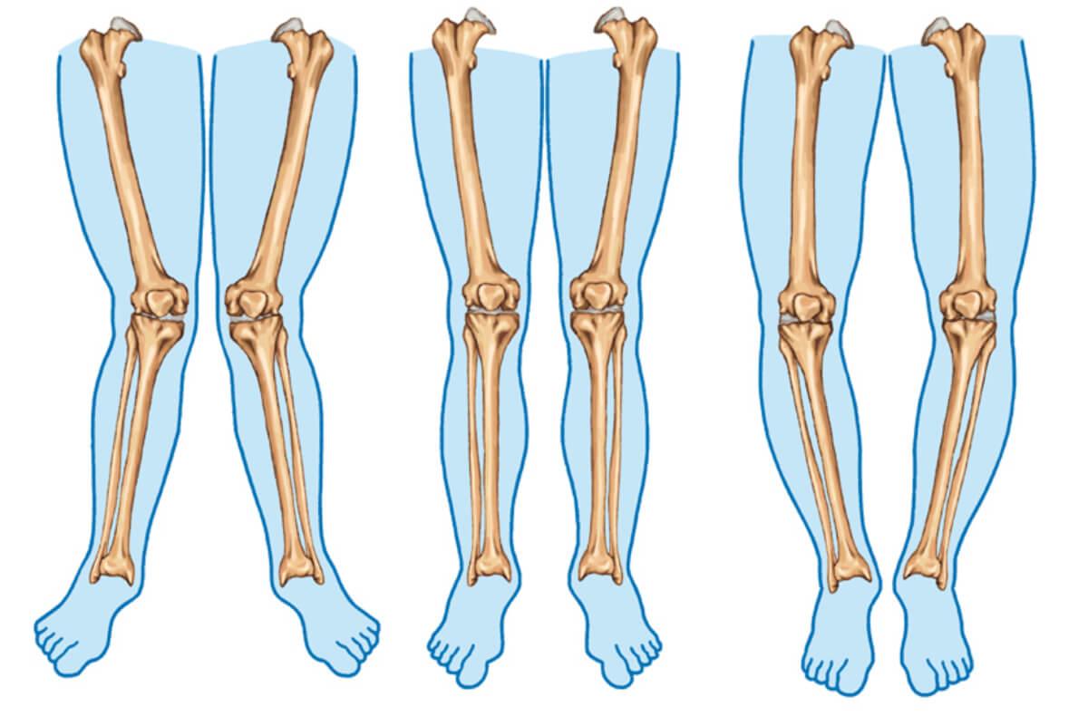 Tipos de piernas.