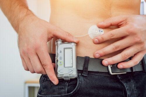 ¿Qué es una bomba de infusión de insulina?