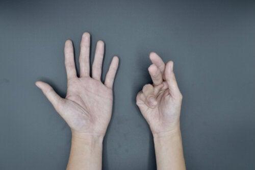 Contractura de Dupuytren: causas, síntomas y tratamientos