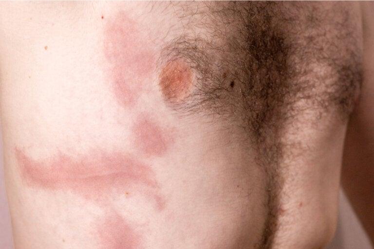 Contusión de costilla: causas, síntomas y cuidados